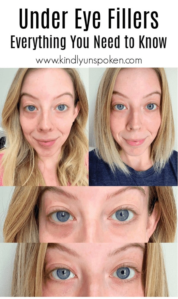 Curious about under eye fillers for dark circles? I'm sharing my experience of getting Juvederm Voluma cheek filler and Juvederm Volbella under eye filler, answering frequently asked questions including cost, pain, and facts, and sharing my before and after results. #filler #undereyefiller #skincare #juvederm